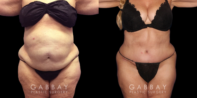 Patient 08 Front View Tummy Tuck Gabbay Plastic Surgery