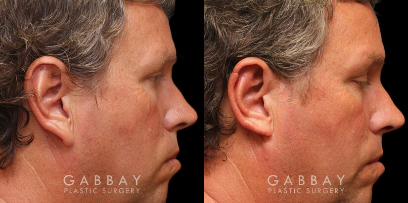 Patient 01 Right Side View Ear reduction Gabbay Plastic Surgery