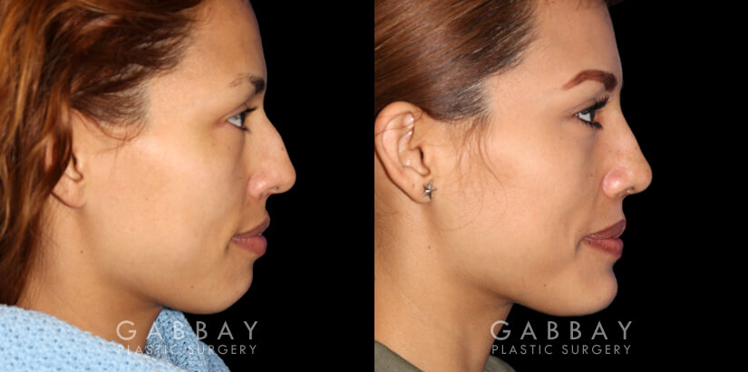 Patient 01 Right Side View Rhinoplasty Gabbay Plastic Surgery