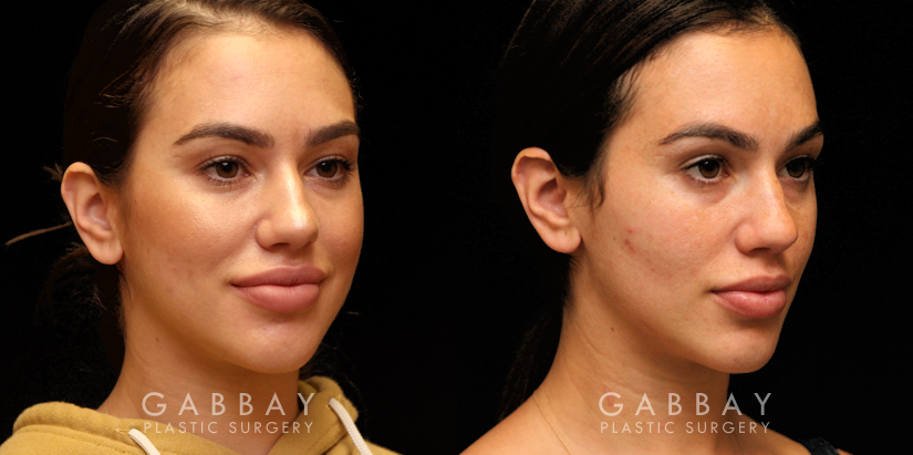 Patient 03 3/4th Right Side View Buccal Fat Pad Removal Gabbay Plastic Surgery