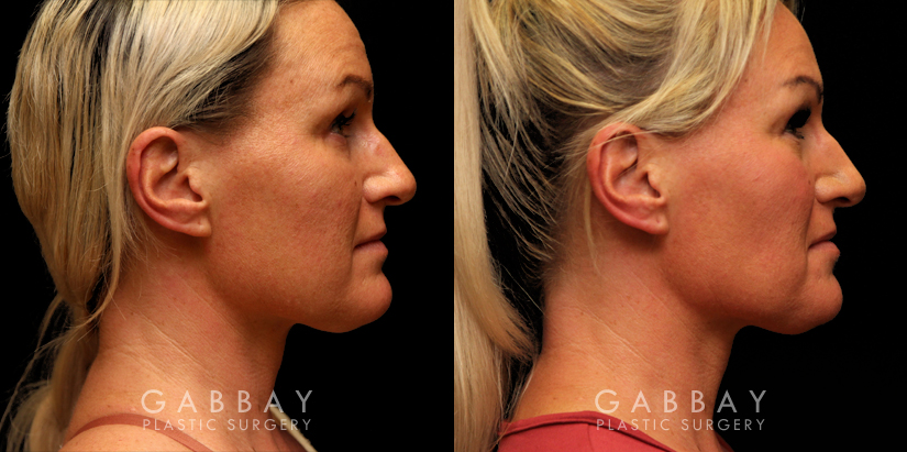 Patient 06 Right Side View Buccal Fat Pad Removal Gabbay Plastic Surgery