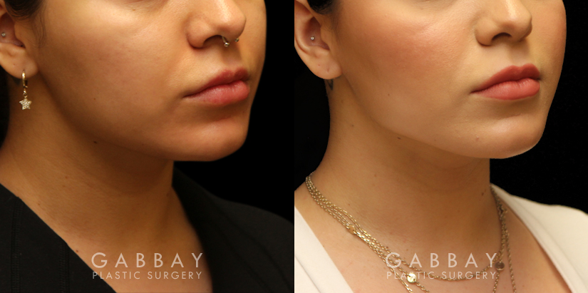 Patient 08 3/4th Right Side View Buccal Fat Removal with Lipo to Chin Gabbay Plastic Surgery