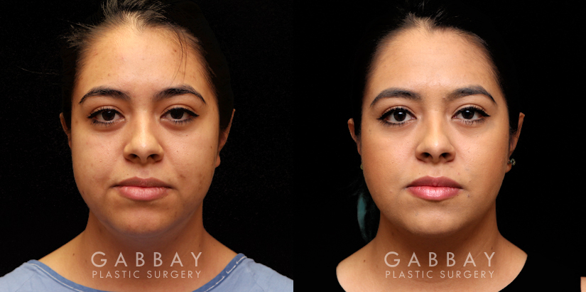 Patient 10 Front View Buccal Fat Pad Removal Gabbay Plastic Surgery