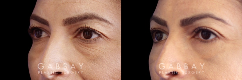 Patient 01 3/4th Left Side View Blepharoplasty Gabbay Plastic Surgery