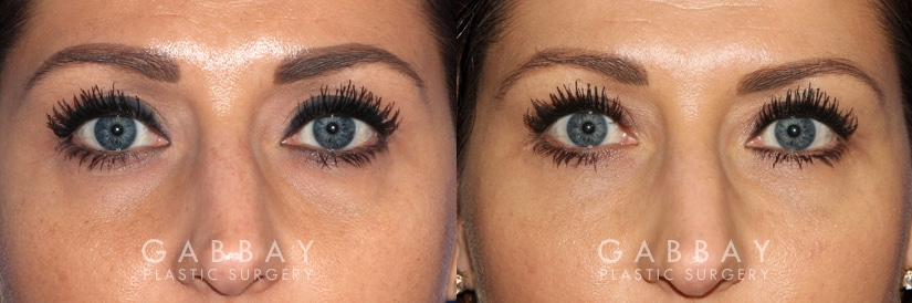 Patient 02 Front View Upper Eyelid Blepharoplasty with Fat Transfer to Face Gabbay Plastic Surgery