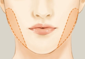 Buccal Fat Removal Dr Gabbay