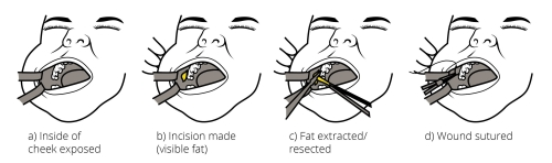 Buccal Fat Pad Removal Procedure Dr Gabbay