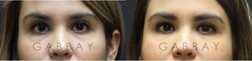 Patient 01 Before And After Picture Dermal Fillers Gabbay Plastic Surgery