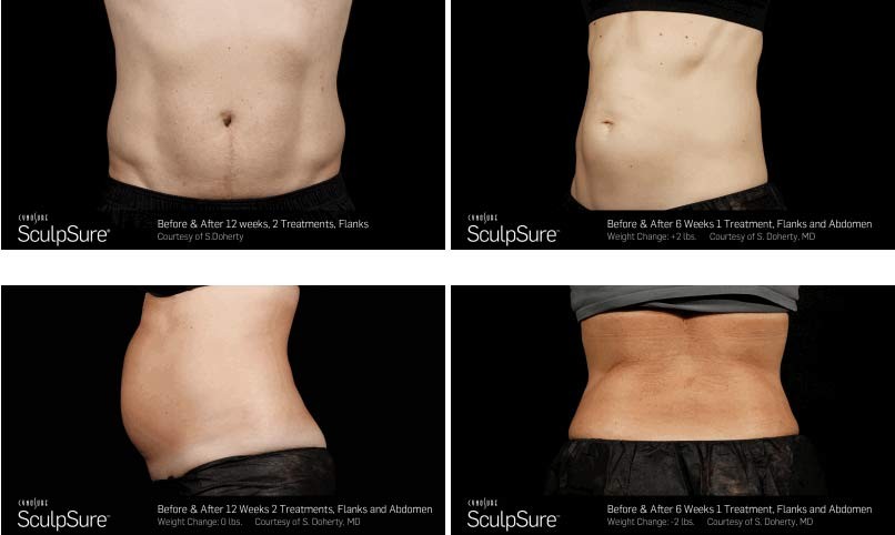 Patient 01 Before And After Picture Sculpsure Gabbay Plastic Surgery
