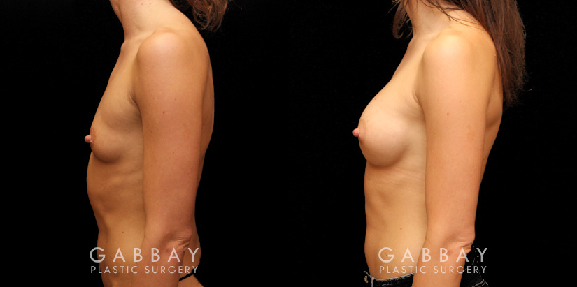 Patient 02 Left Side View Breast Augmentation Silicone Implants Gabbay Plastic Surgery