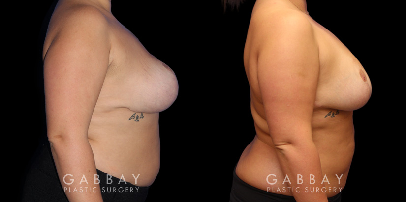 Patient 02 Right Side View Breast Fat Grafting Gabbay Plastic Surgery
