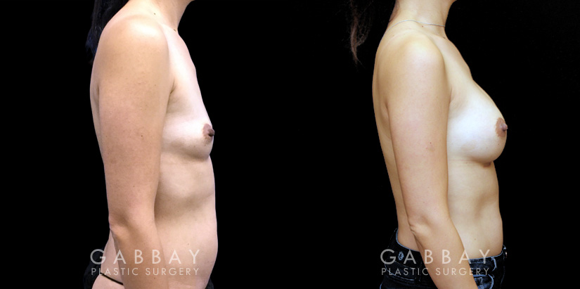 Patient 03 Right Side View Breast Augmentation Silicone Implants Gabbay Plastic Surgery