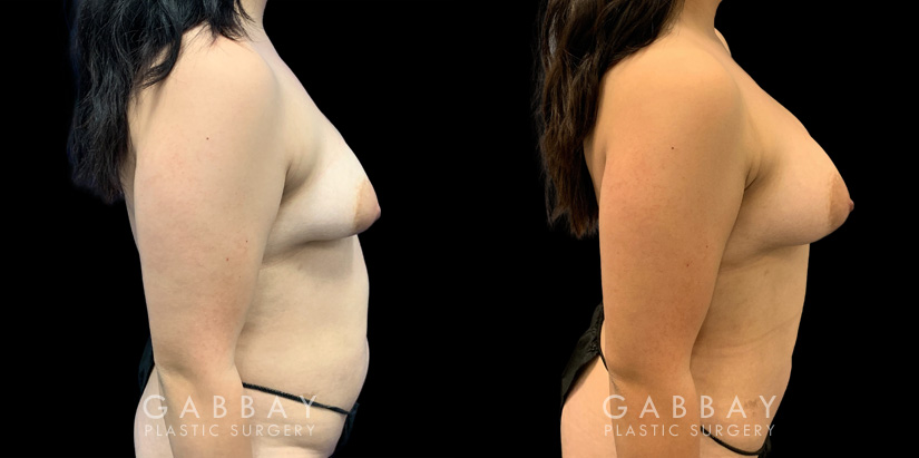 Patient 04 Right Side View Breast Fat Grafting Gabbay Plastic Surgery