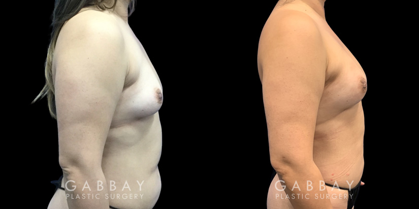 Patient 05 Right Side View Breast Fat Grafting Gabbay Plastic Surgery