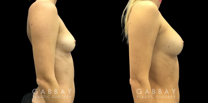 Patient 06 Right Side View Breast Fat Grafting Gabbay Plastic Surgery