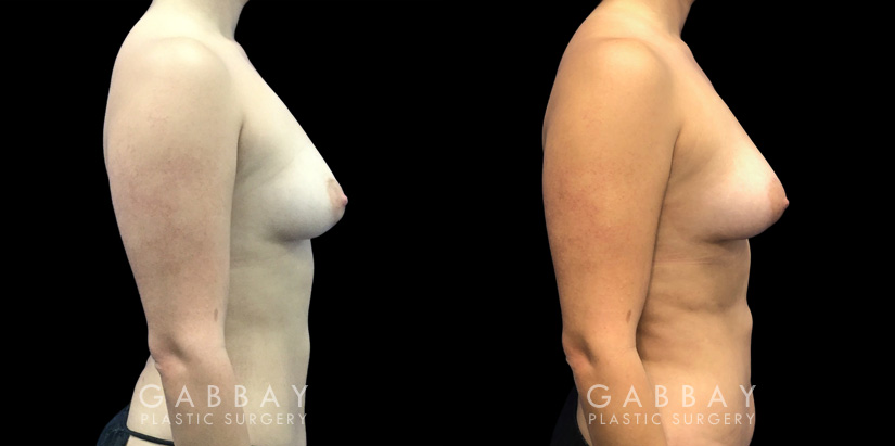 Patient 09 Right Side View Breast Fat Grafting Gabbay Plastic Surgery