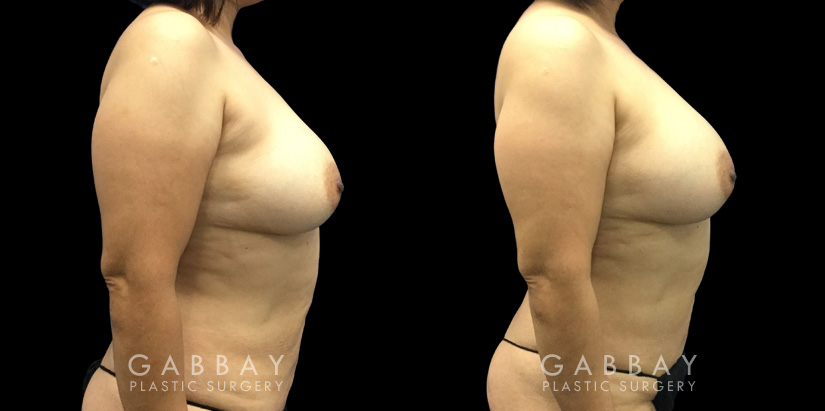 Patient 10 Right Side View Breast Fat Grafting Gabbay Plastic Surgery