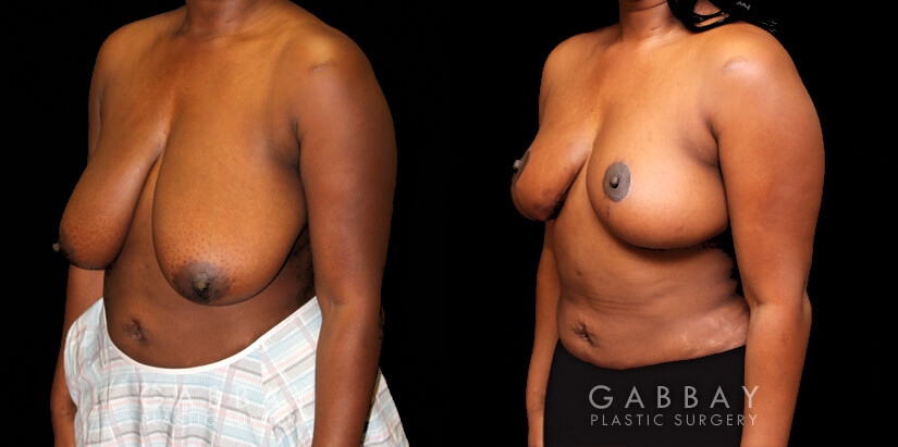 Patient 01 3/4th Left Side View Breast Reduction with Lift Gabbay Plastic Surgery