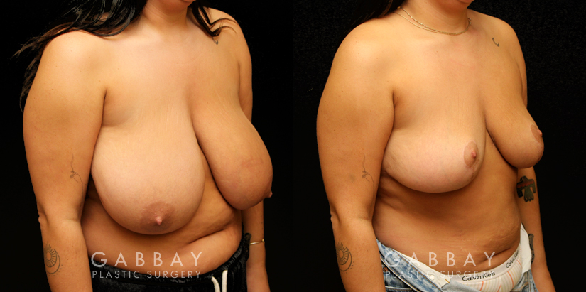 Patient 02 3/4th Right Side View Breast Reduction with Lift Gabbay Plastic Surgery