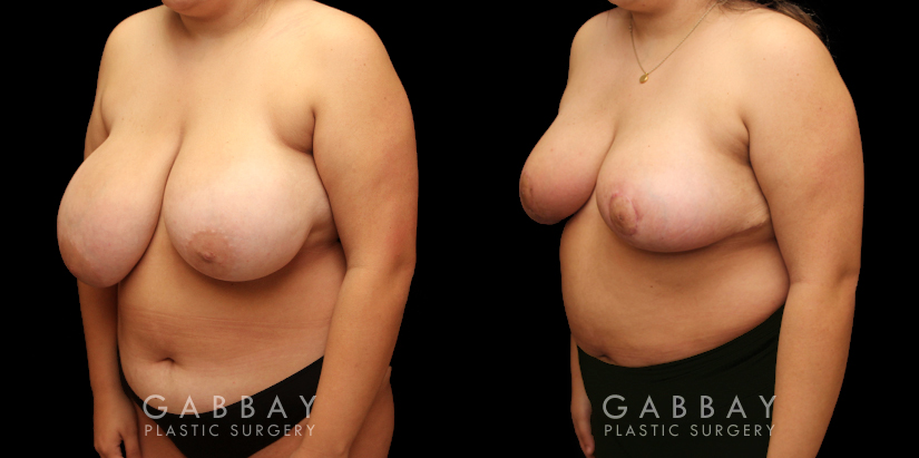 Patient 05 3/4th Left Side View Breast Reduction Gabbay Plastic Surgery