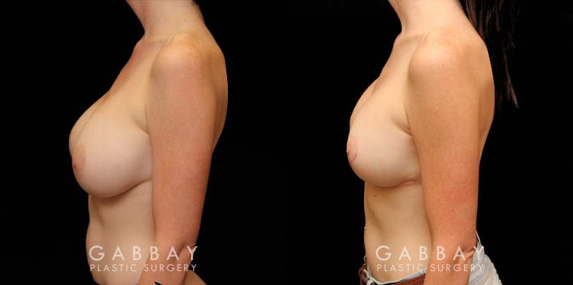 Patient 04 Left Side View Breast Augmentation Silicone & Lift Implants Gabbay Plastic Surgery