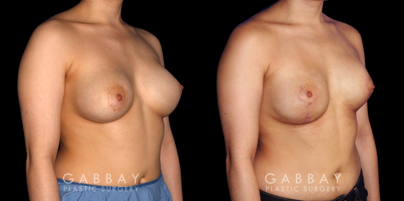 Patient 06 3/4th Right Side View Breast Augmentation-Remove and Replace Saline & Full Lift Gabbay Plastic Surgery