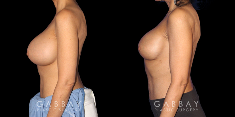 Patient 07 Left Side View Breast Revision Gabbay Plastic Surgery