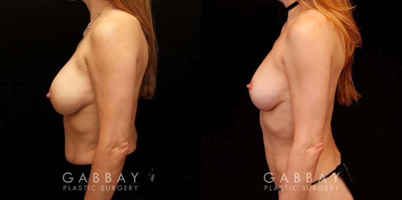 Patient 11 Left Side View Implant Removal and Lift Gabbay Plastic Surgery