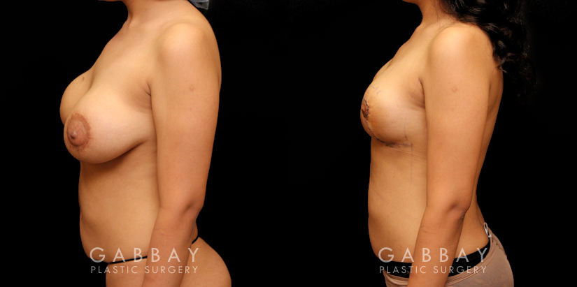 Patient 15 Left Side View Removal of Implants, Auto Augmentation with Mesh Gabbay Plastic Surgery
