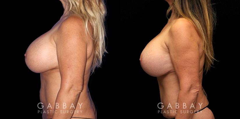 Patient 14 Left Side View Abdominoplasty Gabbay Plastic Surgery