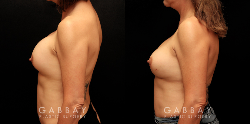 Patient 16 Left Side View Removal and Replacement Gabbay Plastic Surgery
