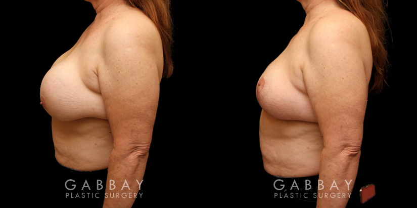 Patient 17 Left Side View Implant Removal and Lift Gabbay Plastic Surgery