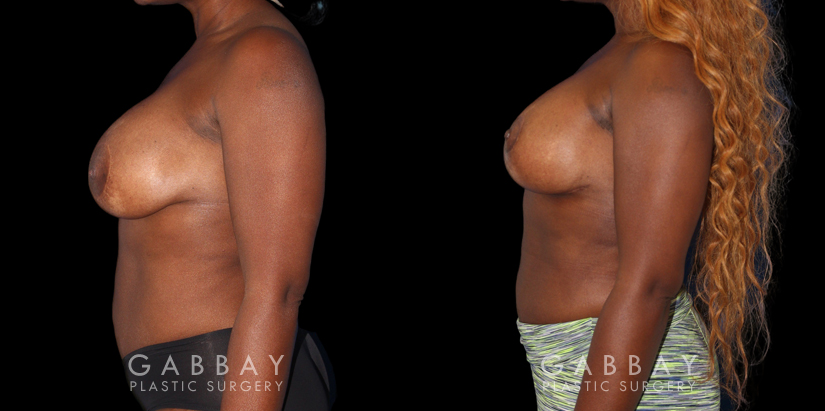 Patient 18 Left Side View Breast Revision Gabbay Plastic Surgery