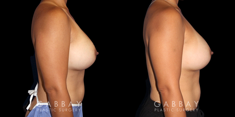 Patient 19 Right Side View Breast Revision Gabbay Plastic Surgery