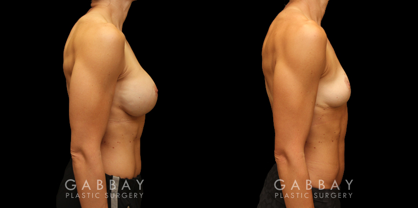 Patient 03 Right Side View Implant Removal/Mastopexy/Auto Augmentation Gabbay Plastic Surgery