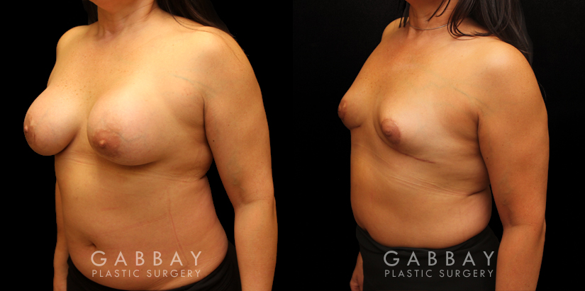 Patient 06 3/4th Left Side View Auto Augmentation with Lift Gabbay Plastic Surgery