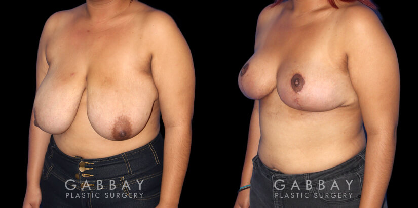 Patient 01 3/4th Left Side View Breast Mastopexy Gabbay Plastic Surgery