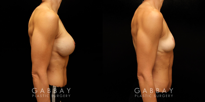 Patient 05 Right Side View Implant Removal/Mastopexy/Auto Augmentation Gabbay Plastic Surgery