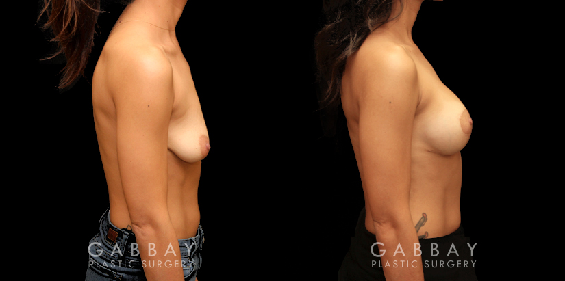 Patient 10 Right Side View Breast Augmentation Silicone & Lift Gabbay Plastic Surgery