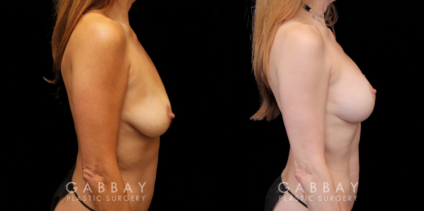 Patient 01 Right Side View Implant Removal and lift Gabbay Plastic Surgery