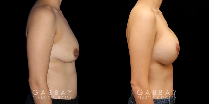 Patient 02 Right Side View Augpexy Gabbay Plastic Surgery