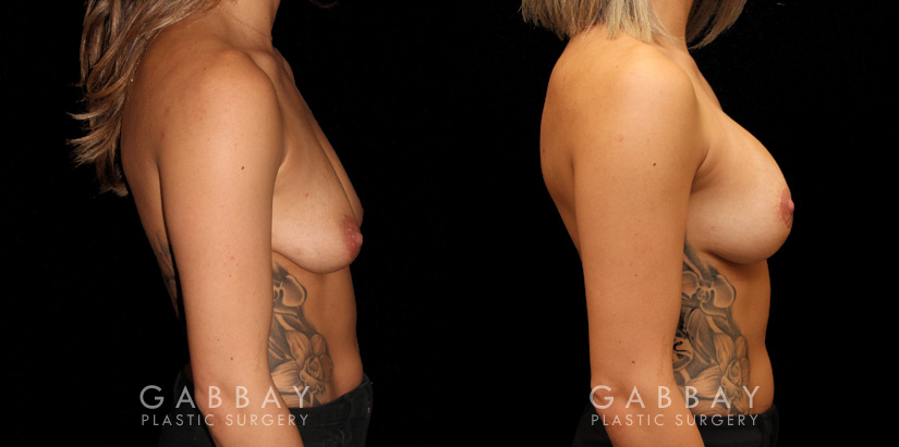 Patient 03 Right Side View Mastopexy with Breast Augmentation Gabbay Plastic Surgery
