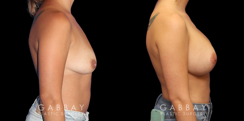 Patient 05 Right Side View Breast Augmentation w/ Mastopexy - Silicone Gabbay Plastic Surgery