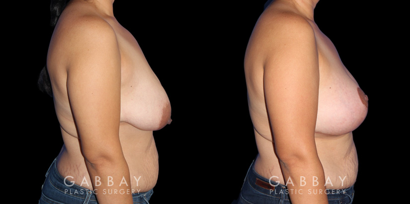 Patient 06 Right Side View Breast Augmentation - Silicone, Mastopexy Gabbay Plastic Surgery