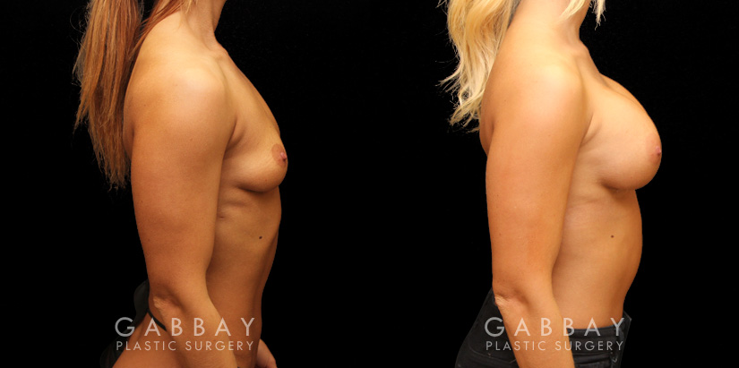 Patient 08 Right Side View Implants repeal & replacement (left) Gabbay Plastic Surgery