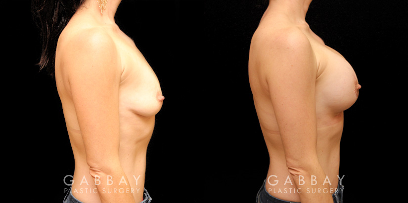 Patient 07 Right Side View Augpexy Gabbay Plastic Surgery
