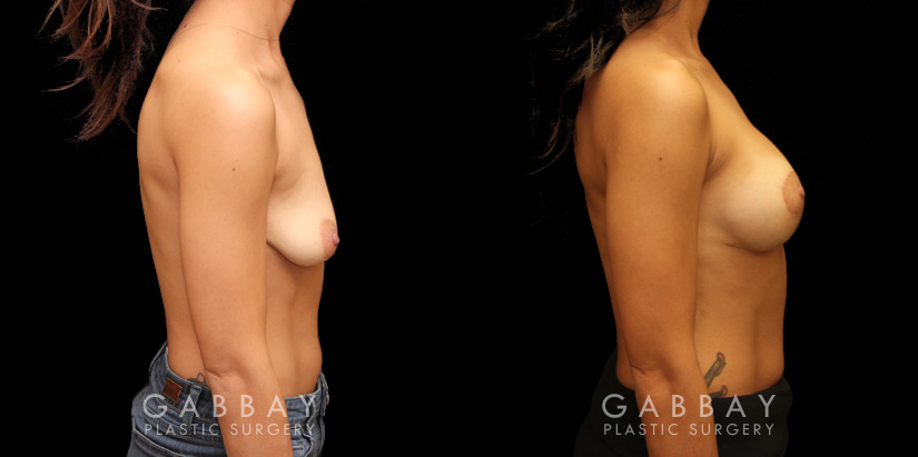 Patient 09 Right Side View Augpexy with mesh Gabbay Plastic Surgery