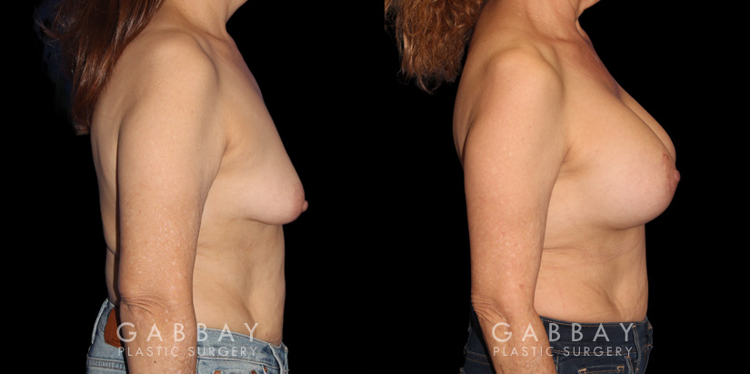 Patient 16 Right Side View Breast Augmentation w/ Mastopexy - Silicone Gabbay Plastic Surgery
