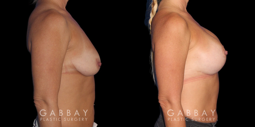 Patient 17 Right Side View Wise Mastopexy with Silicone Breast Implants Gabbay Plastic Surgery
