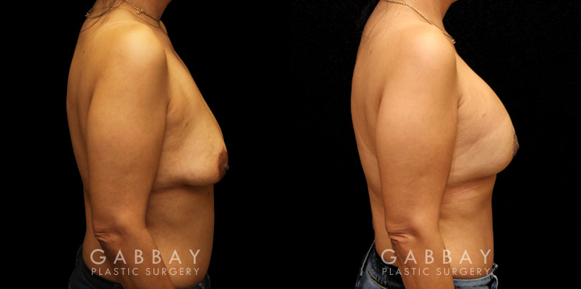 Patient 19 Right Side View Breast Aug/Pexy Gabbay Plastic Surgery